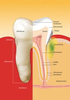 Wie Parodontose beginnt (© proDente e.V.)