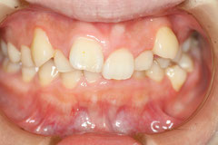 歯周病と歯並び 治療前