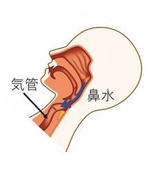 背中を倒す仰臥位では、鼻水は喉の背中側に沿って流れ気管に向かっていく