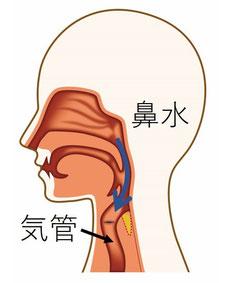 座位では鼻水は、重力により喉に流れ込み気管に向かっていく
