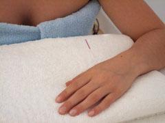 Akupunktur für Schwangere in Köln