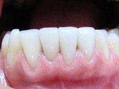 Виниры на четырех нижних резцовых зубах (снимок сделан после 4 лет  с момента установки) - дёсны здоровые и имеют бледно-розовый цвет