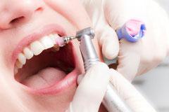 Bei der Professionellen Zahnreinigung wird der gesamte Zahnbelag von Profis entfernt (© proDente e.V.)