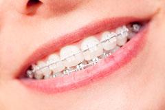 Unauffällige transparente Brackets  (© unpict - Fotolia.com)