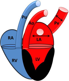 HCM mit Rückstau in linkes atrium und Pulmonalvene; RA: rechtes Atrium; RV: rechter Ventrikel; Pu: Pulmonalarterie; LA: linkes Atrium; LV: linker Ventrikel; PV: Pulmonalvene; Ao: Aorta