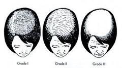 Female pattern hair loss scale