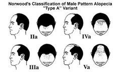 Male pattern hair loss scale