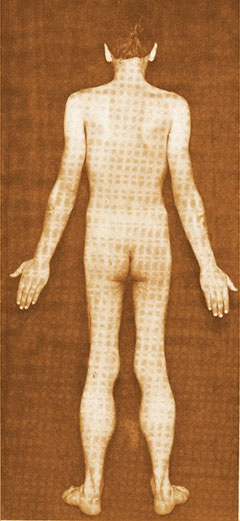 Un exemple de dystrophie musculaire