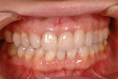 審美歯科 変色した歯の治療