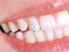 """Zahnschmuck gibt es als """"Brillis"""" (sog. Twinkles) und (weiß-)goldfarben in verschiedenen Formen (sog. Dazzlers)(© uwimages - Fotolia.com)"""
