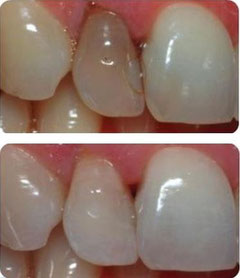 Internes Bleaching hilft abgestorbene dunkle  Zähne aufzuhellen