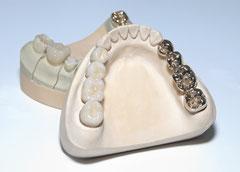 Keramik gibt der Zahnbrücke die Farbe von Zähnen. Zahnersatz Weiden