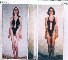 Anoressia e bulimia difficili da trattare