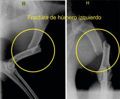 Fractura de húmero izquierdo