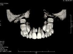 Estudio independiente de la dentición, en radiología