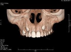 Diagnóstico por imagen en 3D