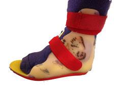 dynamische Fußorthese