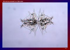 Micrasterias anomale var. bifurcata (Nord Australien, Mine Valley)-L 252, B 196