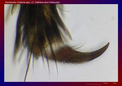 Stechmücke (Culiseta spec.),♀, Fußklaue ohne Nebenzahn-ca. 300x