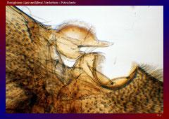 Honigbiene (Apis mellifera),Vorderbein - Putzscharte