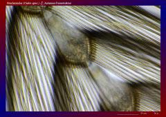 Stechmücke (Culex spec.) ♂, Antenne-Feinstruktur-ca. 300x