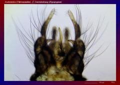 Zuckmücke (Chironomidae), ♂, Genitalanhang (Hypopygium)-ca. 70x