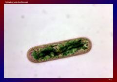 Cylindocystis brebissonii (Hahlenmoor, LK OS)-L 52, B 19