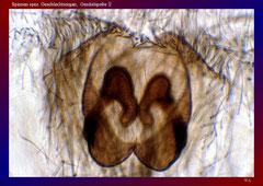 Spinnen spez. Geschlechtsorgan, Genitalspalte ♀