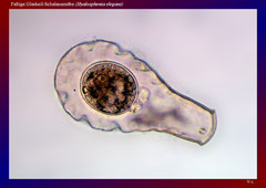 Faltige Glaskeil-Schalenamöbe (Hyalosphenia elegans)