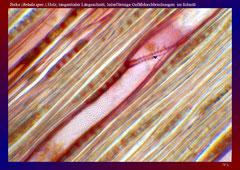 Birke (Betula spec.),Holz, tangentialer Längsschnitt, leiterförmige Gefäßdurchbrechungen im Schnitt