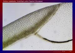Blattlaus (Aphidoidea), Vorderflügel, großes Flügelmal (Pterostigma)-ca. 70x