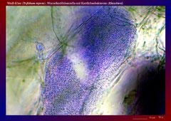Weiß-Klee (Trifolium repens), Wurzelknöllchenzelle mit Knöllchenbakterien (Rhizobien)-ca. 600x