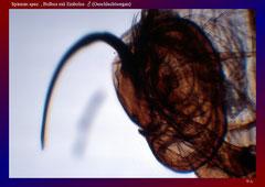 Spinnen spez. , Bulbus mit Embolus ♂ (Geschlechtsorgan)