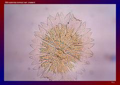 Micrasterias torreyi var. crameri (Nord Australien, Mine Vally)-L 348, B 320