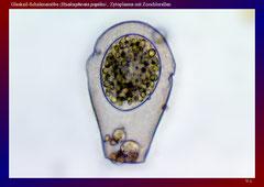 Glaskeil-Schalenamöbe (Hyalosphenia papilio)