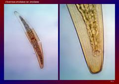 Closterium striolatum var. striolatum