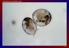 Flaschentierchen (Trachelius ovum)