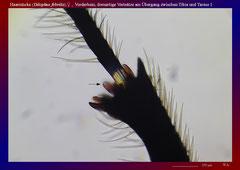 Haarmücke (Dilophus febrilis),♀ , Vorderbein, dornartige Vortsätze am Übergang zwischen Tibia und Tarsus 1-ca. 70x