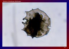 Rädertier (Brachionus dolobratus)