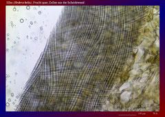 Efeu (Hedera helix), Frucht quer, Zellen aus der Scheidewand-ca. 70x