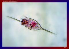 Rädertier (Kellicottia spec.)