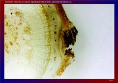 Holunder (Sambucus nigra), Sproßquerschnitt mit Lentizelle (Korkwarze)-ca. 30x