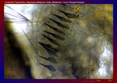 Asiatische Tigermücke (Stegomyia albopicta_Aedes albopictus), Larve, Striegelschuppen-ca. 150x