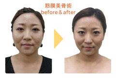 筋膜美骨術 before&after