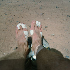 Meine schmerzende Füße