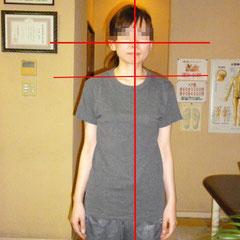 耳と肩の高さに左右差があり、頭の位置が中心からズレています。