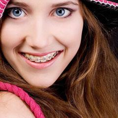 OrtodonciA Smile On!
