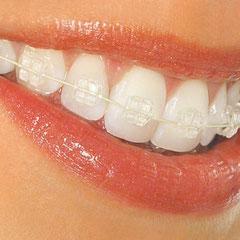 Ortodoncia Queretaro