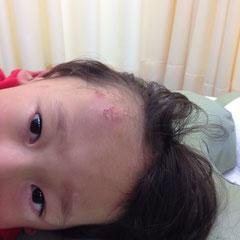 受傷後二日目 3DMENS 二回目治療後