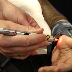 Laserbehandlung nach Puls-Schreibung